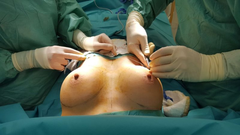 Šití ran po zvětšení prsou